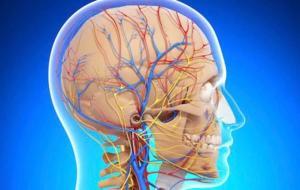 Церебральная ангиография сосудов - симптомы