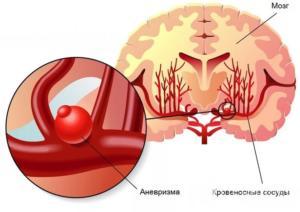Церебральная ангиография сосудов - лечение