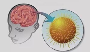 Вирусный энцефалит: симптомы и лечение