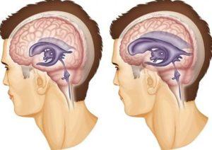 Смешанная гидроцефалия головного мозга: лечение