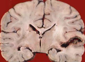 Абсцесс головного мозга - симптомы, лечение