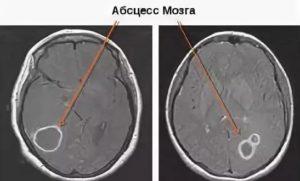 Абсцесс головного мозга - симптомы