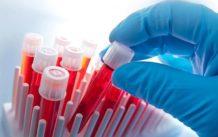 Анализ крови на энцефалит