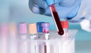 Анализ крови на энцефалит - результаты