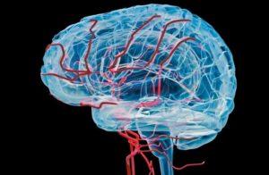 Аневризма сосудов мозга - симптомы