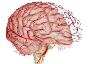 Аневризма сосудов мозга