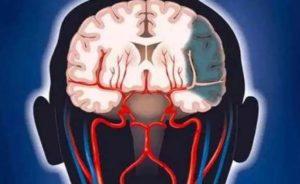 Аноксическое поражение головного мозга