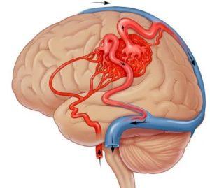 Кортикобазальная дегенерация головного мозга - лечение