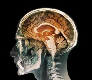 Энцефалит Расмуссена - симптомы и лечение