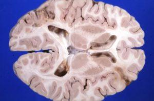 Энцефалопатия и ее причины