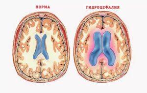 Смешанная гидроцефалия головного мозга: причины