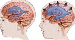 Гидроцефалия головного мозга - симптомы и причины