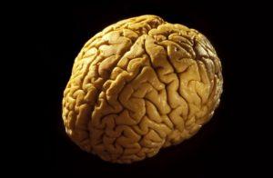 Кора головного мозга: симптомы