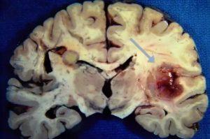 Лимбический энцефалит: симптомы