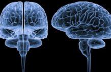 Очаговые поражения мозга