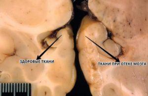 Отек мозга: причины и лечение