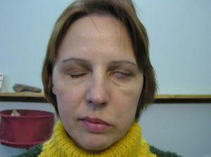 Паралич мимических мышц: симптомы