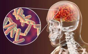 Туберкулез мозга: симптомы и лечение