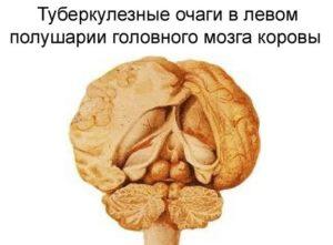 Туберкулез мозга: лечение