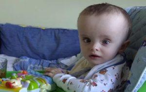 Гидроцефалия у детей: лечение
