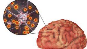 Амебный менингит - симптомы