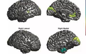 Биополярное расстройство мозга
