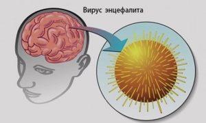 Вирус энцефалита: симптомы