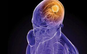 Гриппозный энцефалит: лечение