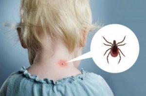 Энцефалит у детей и его особенности