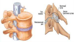Защемление спинномозгового нерва