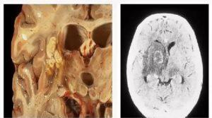 Токсоплазмозный энцефалит мозга симптомы