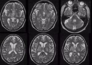 Токсоплазмозный энцефалит мозга лечение