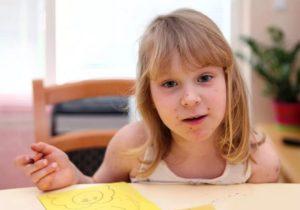Ветряночный энцефалит: причины и лечение