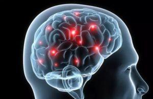 Атрофия мозжечка мозга
