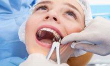 Осложнения после удаления зуба: кто виноват и что делать?