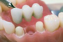 Имплантация зубов. Способ обрести красивую улыбку