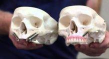 Установка скуловых имплантатов и наращивание кости