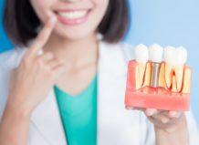 Имплантация зубов – много видов, удивительные возможности