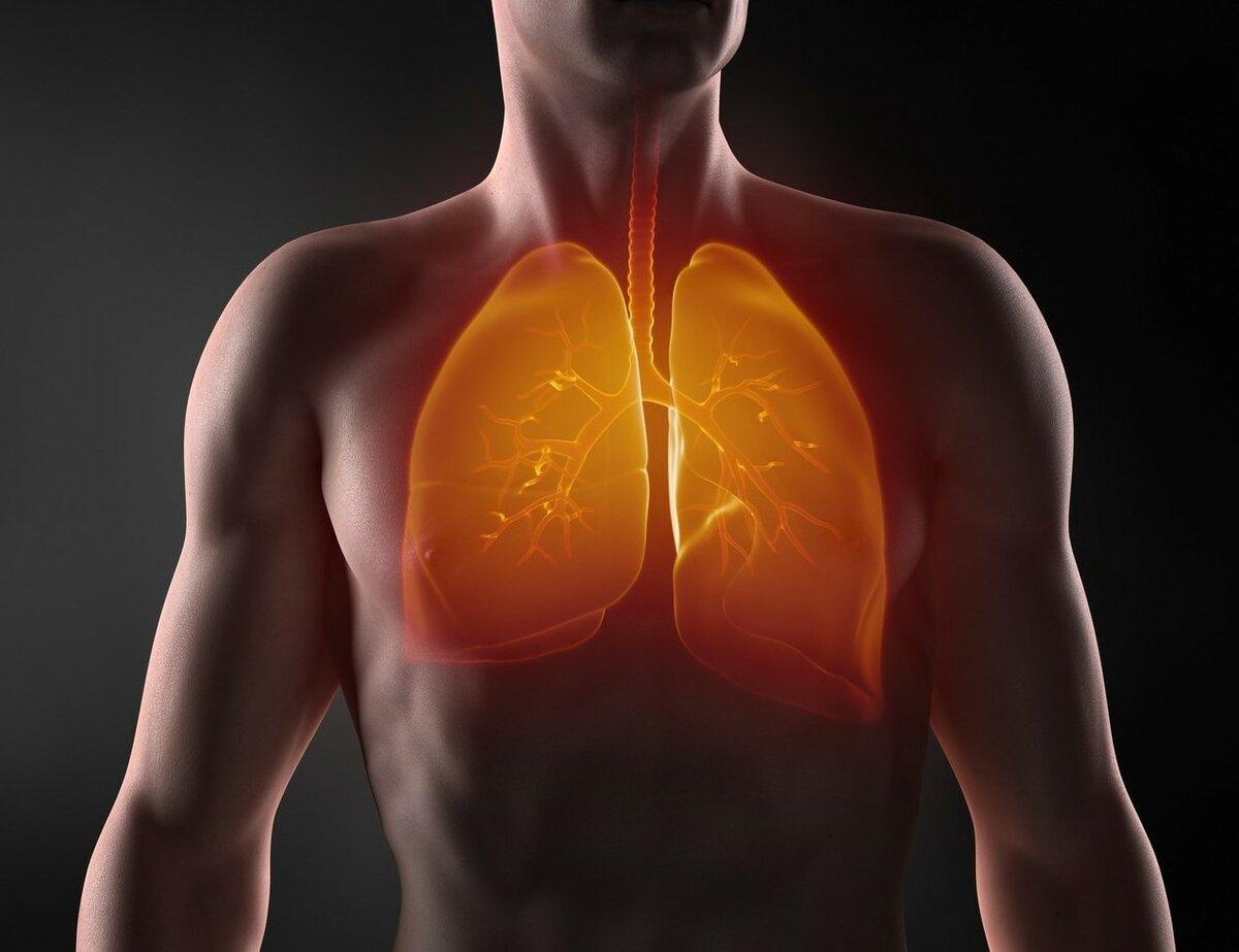 Плеврит легких — симптомы и лечение