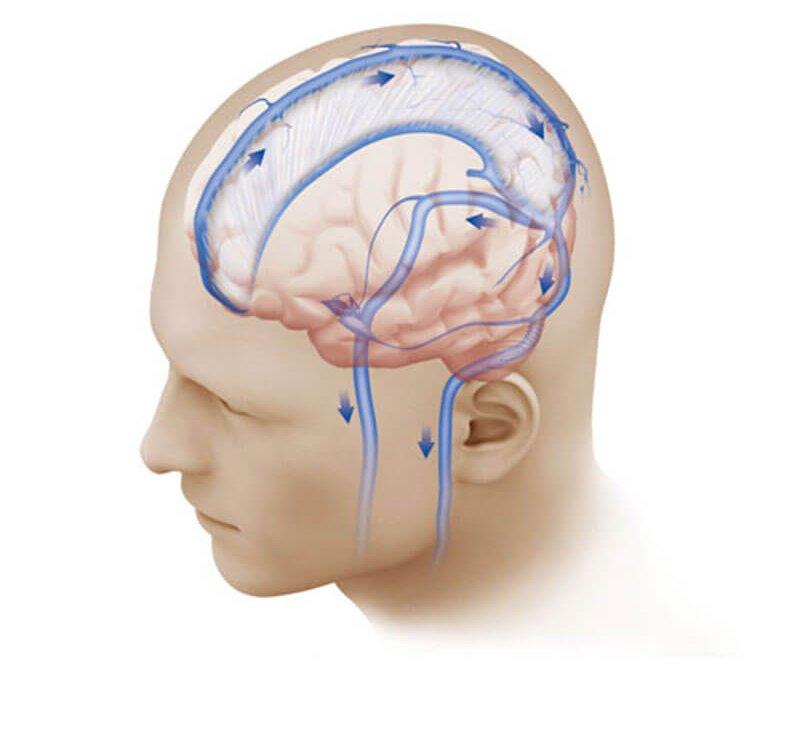 Доброкачественная внутричерепная гипертензия