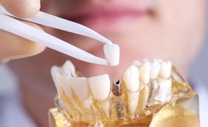 Имплантация или протезирование? Как лучше восстановить отсутствующие зубы