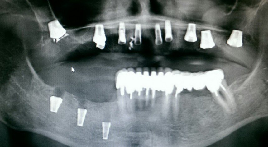 Как понять, прижился ли имплант зуба?