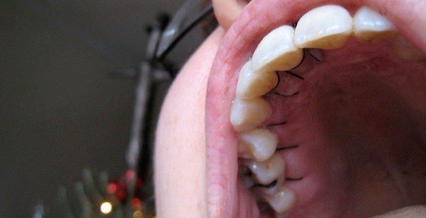 Лоскутная операция в стоматологии