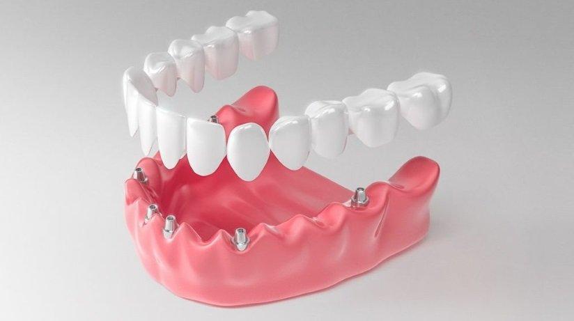 Имплантация зубов. Съемное и несъемное